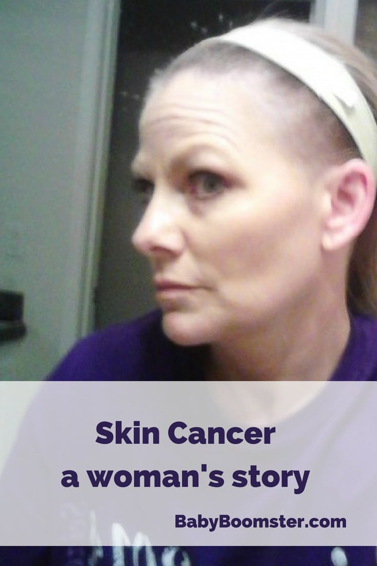 A skin cancer survivor tells us what it was like being diagnosed and what treatments were helpful to her.